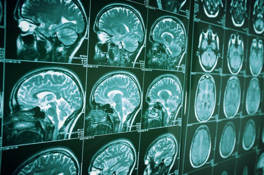 Réseau de transmission sécurisé d'image médicale de service de radiologie